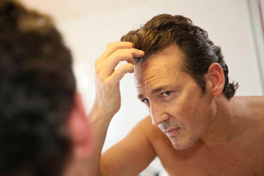 Geheimratsecken: Ablauf & Risiken der Haartransplantation