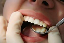 Parodontitis Therapie