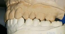 Fallbeispiel eines Patienten mit erheblichen Kopf- und Nackenschmerzen sowie extrem freiliegenden Zahnhälsen
