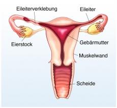 Gutartiger Eierstocktumor: Ursachen, Symptome und Behandlung