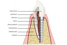 Was ist implantatgetragener Zahnersatz? Definition und Alternativen