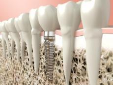 Was sind enossale Implantate? Ablauf der OP & Nachbehandlung
