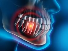 Backenzahn ziehen lassen: Alles über Ablauf, Risiken, Kosten & Zahnersatz
