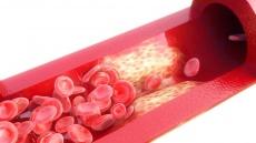 Lipidapherese: Wie Blutreinigungsverfahren helfen, Blutfetterhöhungen zu behandeln