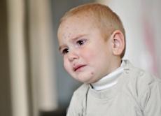 Windpocken- Harmlose Kinderkrankheit oder gefährliche Erkrankung?