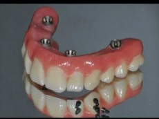 All-on-4: an einem Tag zu festen Zähnen ohne Knochenaufbau
