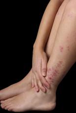 Neurodermitis: Ein Teufelskreis aus Juckreiz, Kratzen und Entzündung