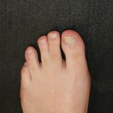 Syndaktylie - zusammengewachsene Zehen