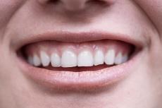 Das Geheimnis schöner Zähne im Alter