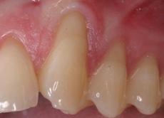 Parodontal-chirurgische Deckung freiliegender Zahnhälse