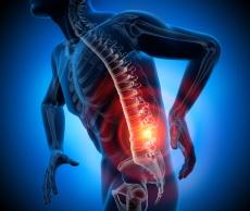 Wirbelsäulenbeschwerden: Wann Eigenblut-Therapien (PRP) helfen können