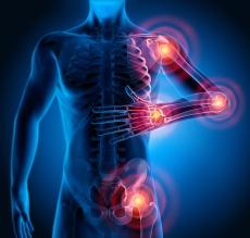 Entzündliche Erkrankungen: So kann die Osteopathie helfen