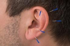 Implantat-Ohr-Akupunktur bei Morbus Parkinson und Restless Legs Syndrom