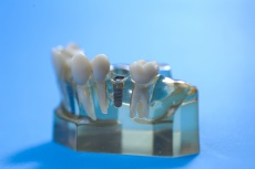 Zahnimplantate trotzt Parodontitis? Was Patienten wissen sollten