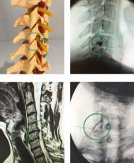 Schmerzen in der Halswirbelsäule? Erfolg auch ohne OP mit Spritzenanwendung