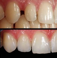 Zahnlücken mit Veneers schließen: So funktioniert's
