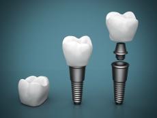 Zahnkronen, Teilkronen, Keramik Inlays & Co.: So ist Zahnersatz an einem Tag möglich