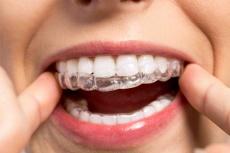 Bleaching beim Zahnarzt oder Strips für zu Hause: Was ist besser?