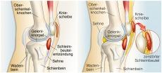 Schleimbeutelentzündung am Knie: Ursachen, Symptome und Behandlung
