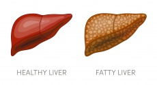 Fettleber-Erkrankungen (NAFLD): Ursachen & 5 Tipps zur Behandlung