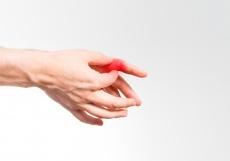 Ursachen & Behandlung von Schmerzen am Kahnbein: So lindern Sie Beschwerden an der Hand