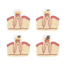 Wurzelbehandlung bei tiefer Karies? Die Überkappung des Zahnmarks ist eine Alternative!