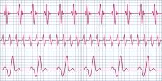 Herzfrequenz: Das ist der Normalwert des Ruhepulses