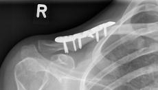 Schlüsselbeinbruch: Wann sollte man operieren, wann nicht?