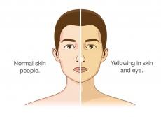 Wenn die Haut gelb wird: Ursachen, Symptome und Therapien der Leberentzündung