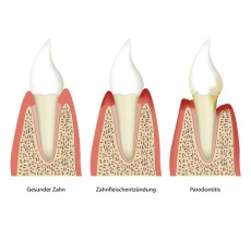 Haben Sie Zahnfleischprobleme? Gingivitis und Parodontitis erklärt