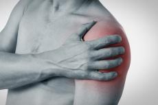 Schleimbeutelentzündung an der Schulter: Schmerzmittel, Kortison oder OP?