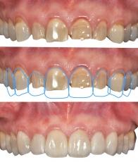 Digital Smile Design: Ergebnisse ästhetischer Zahnbehandlungen im Vorfeld veranschaulichen