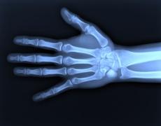 Kahnbeinbruch an der Hand: Das sind mögliche Behandlungen