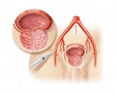 Prostatavergrößerung ohne Operation behandeln: So funktioniert die Embolisation