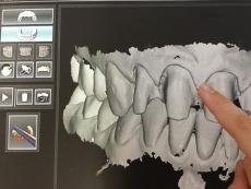 Zahnersatz ohne Abdruck – digitale Abformung mit Intraoralscanner