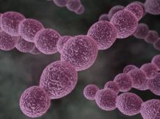Tipps zur Vermeidung einer Endoprotheseninfektion