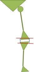 Kinematisches Alignment beim Kniegelenkersatz: Verbesserung der Funktion durch natürlich und individuell eingesetzte Knieprothese