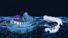 3D-navigierte Zahnimplantate: Mehr Präzision ohne Skalpell