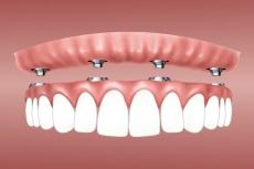Zahnimplantate an einem Tag mit All-on-4: Ablauf & Vorteile