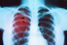 Hochpräzise Strahlentherapie: Verdopplung der Überlebenszeit bei oligometastasiertem nicht-kleinzelligen Lungenkrebs
