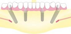 An einem Tag: Zahnimplantate und der darauf verankerte, feste Zahnersatz mit All-on-4