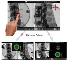 Endoskopische Bandscheibenoperation mit Navigationssystem