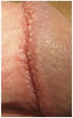 Harmlose Hautveränderung oder Krankheit? Ursachen, Entfernung & Nachbehandlung von Hornzipfeln