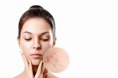 Sebacia: Innovative Therapie aus den USA - Mit Gold und Laser dauerhaft gegen Akne