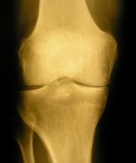 Arthrose Behandlung: Wann ist eine OP notwendig?