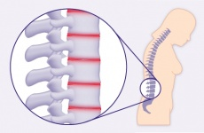 Morbus Bechterew (Spondylitis ankylosans): Symptome, Diagnostik und Therapie
