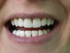 Der beste Schutz vor Gingivitis: Professionelle Zahnreinigung