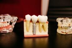 Zahnimplantate: Risiken für Implantatverlust & Vorbeugung