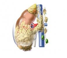 Bessere Prognose beim metastasierten Nierenzellkarzinom: Neue Studienergebnisse