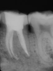Entzündete Zahnnerven: Alles über Symptome & Behandlungsmöglichkeiten